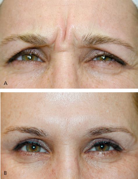 Botulinum Toxin Injection for Facial Wrinkles - - American
