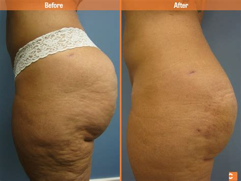Before & After Liposuction - Clearskin Institute