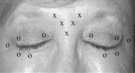 Blepharospasm: Causes, Symptoms And Treatment | Tips